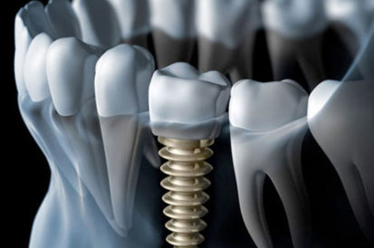 Peak Dental Arts - Dental Implants