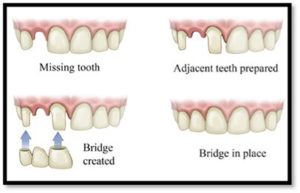 Peak Dental Arts - Bridge examples | Peak Dental Arts - North Vancouver