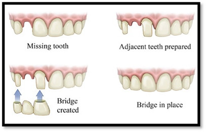 Peak Dental Arts - Bridge