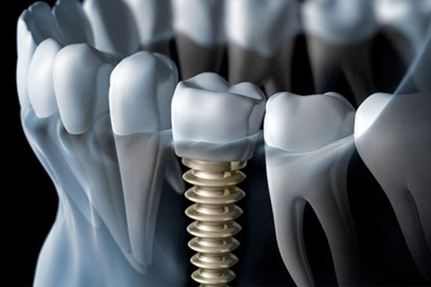 Peak Dental Arts - Dental Implants example | Peak Dental Arts - North Vancouver