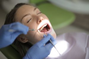 Dental Bonding Procedure in North Vancouver | Peak Dental Arts